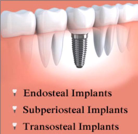 Types Of Dental Implants Smore Newsletters For Business