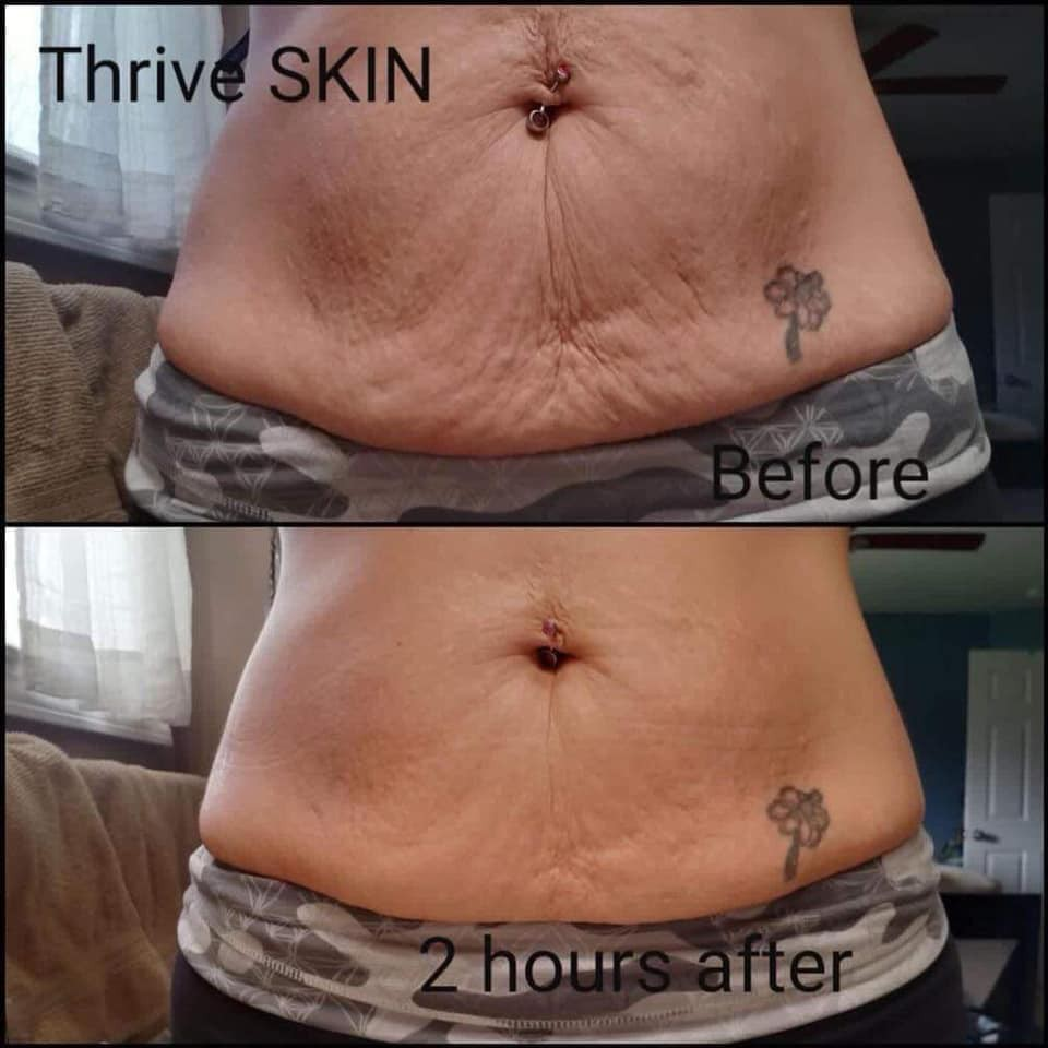 Have you heard about Thrive Skin?   Smore Newsletters for