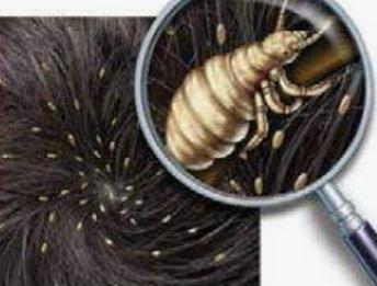 Head lice, nits, or kutis