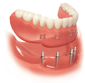 Invisialign Method is Best to Maintain Your Dental Asset