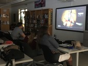 Students viewing the knee replacement surgery.