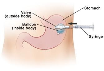 Gastric Feeding Tube (G-tube)