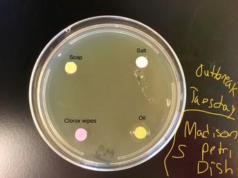Outbreak - the Science of Disease