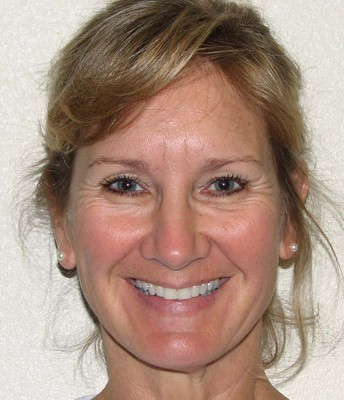 Patty Linn
