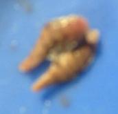 Kidneys (Excretory)
