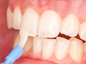 Grade 1 & 2 Dental Sealant