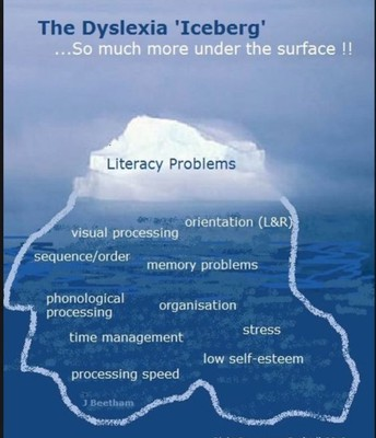 Dyslexia is more than reading and writing difficulties