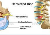 A Herniated Disc