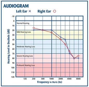 Understanding Basic Hearing Tests