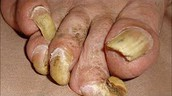 How to Get Rid Of Toenail Fungus Fast - Home Treatments That Are Proven To Works