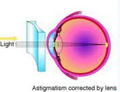 Astigmatism corrected with glasses