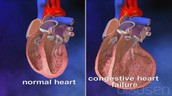 Cardiomegaly compared to a healthy heart
