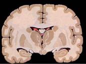 La diséction du cerveau