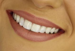 6th Grade Parents: Student Dental Exams Due May 15th