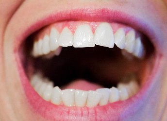 Your Failure to Deal with Your Teeth Could Injure You in Way More Ways Than Just One