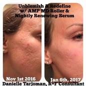 Amp MD for Firmer Skin!