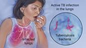 Tuberculosis: