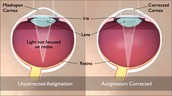 Astigmatism corrected with surgery