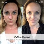 Aging Skin Market