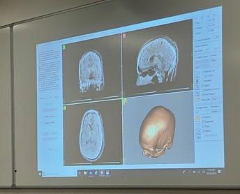 Deep Brain Stimulation Presentation
