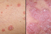 Different levels of Psoriasis