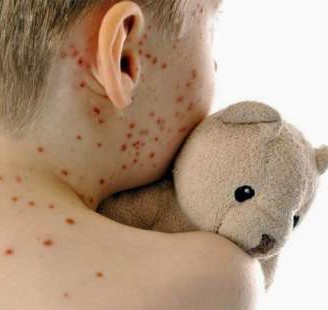 Contagious measles virus remains a concern